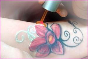 tattoo-removal-treatment