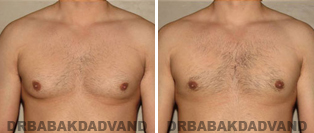 Beverly Hills doctor helping men with gynecomastia regain their masculinity