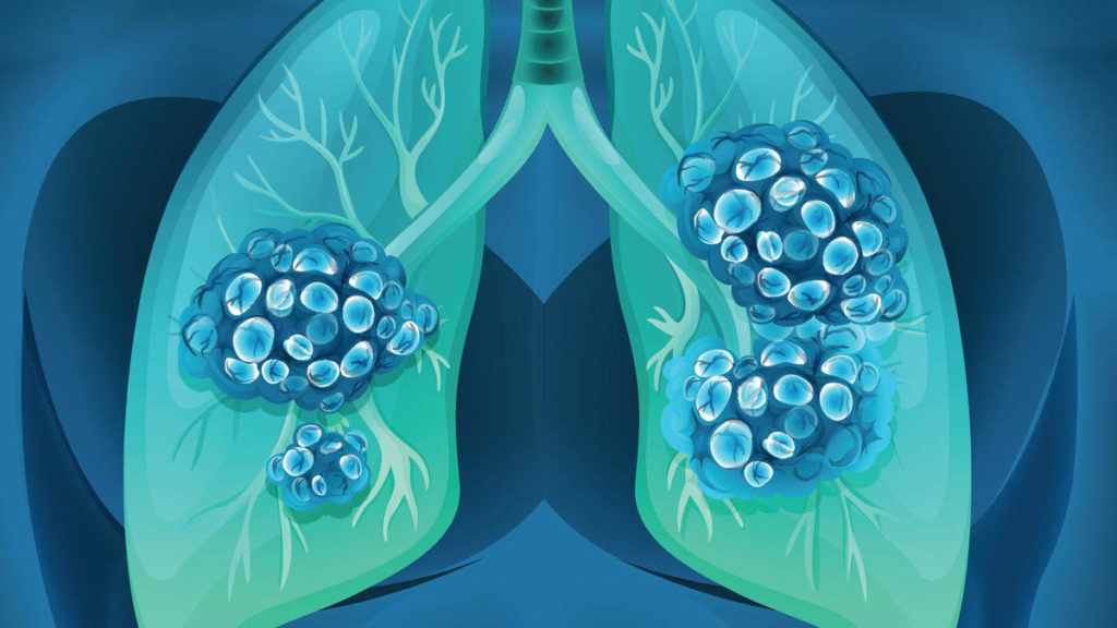 The Heroes in the Battle Against Lung Cancer