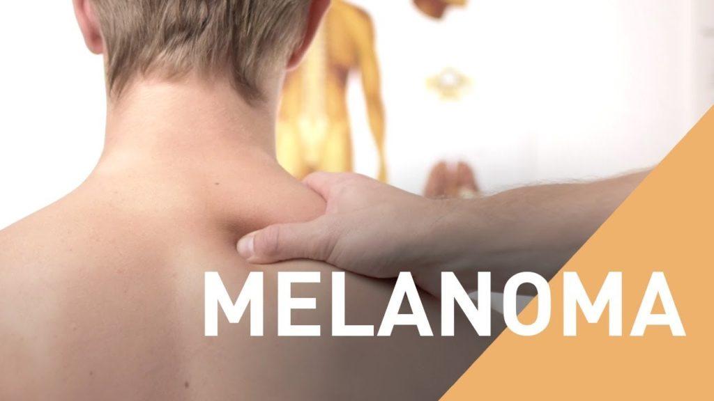 A New Treatment for Melanoma
