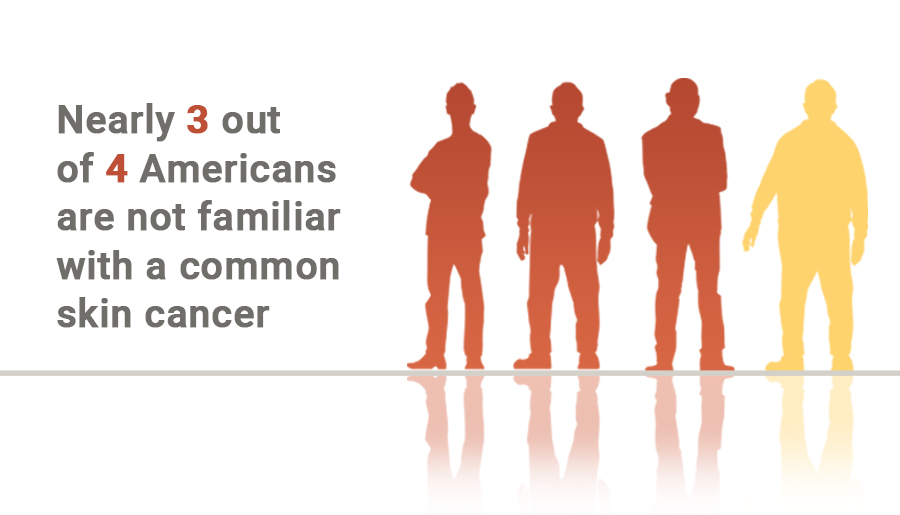 cSCC Skin Cancer is More Commonly Diagnosed than Melanoma. Learn More About the Life-Threatening Cancer.