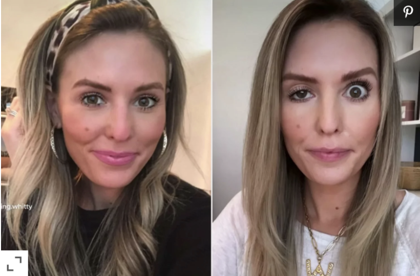 Botox Gone Wrong: How To Prevent This With Dr. Busso
